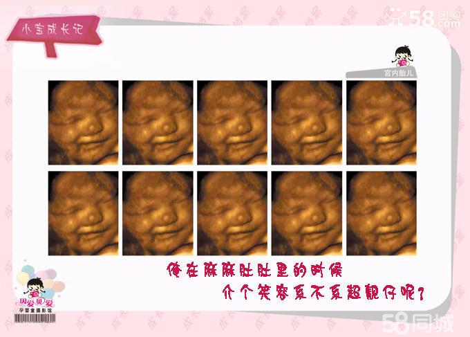 7个月四维彩超图片 7个月胎儿四维彩超 怀孕7个月四维彩超图图片
