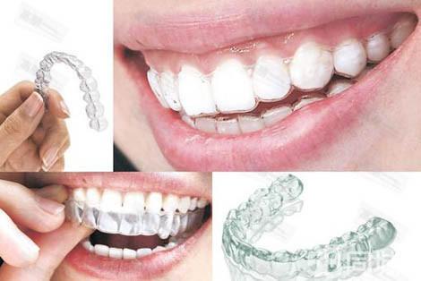 如何检查口腔牙齿