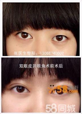1:韩式三点定位双眼皮